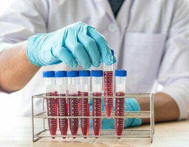 Ekspert: Na hipercholesterolemię rodzinną chorują ludzie młodzi, nawet...