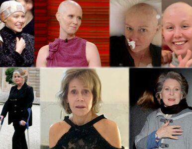 Im się udało – 10 sławnych kobiet, które pokonały raka piersi