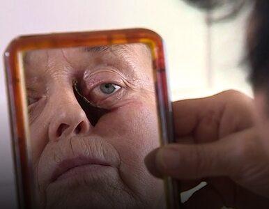 Kobieta marzy o rekonstrukcji twarzy. Nie może liczyć na refundację