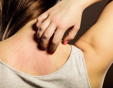 Swędząca skóra, ból pleców... To mogą być objawy poważnej choroby
