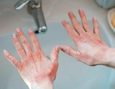Co wygląd dłoni mówi o naszym stanie zdrowia?