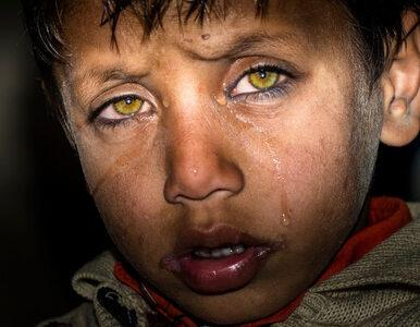 Czym jest hipotermia najczęściej stwierdzana u dzieci i migrantów...