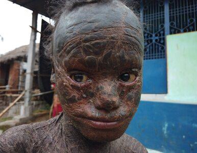 """10-latek jest nazywany """"ludzkim wężem"""". Jego ciało pokrywają liczne łuski"""