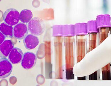 Ta terapia poprawiła wskaźniki przeżycia u pacjentów z ostrą białaczką...