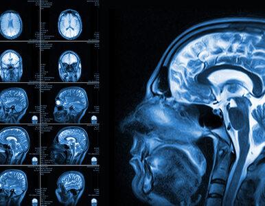 Z Niemiec do Polski. W Lublinie leczą nowotwór mózgu nową metodą