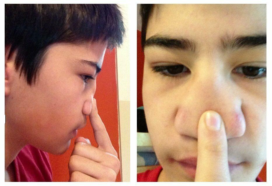 Urodził się bez przegrody nosowej