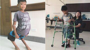 11-letni Aldrin przed i po operacji