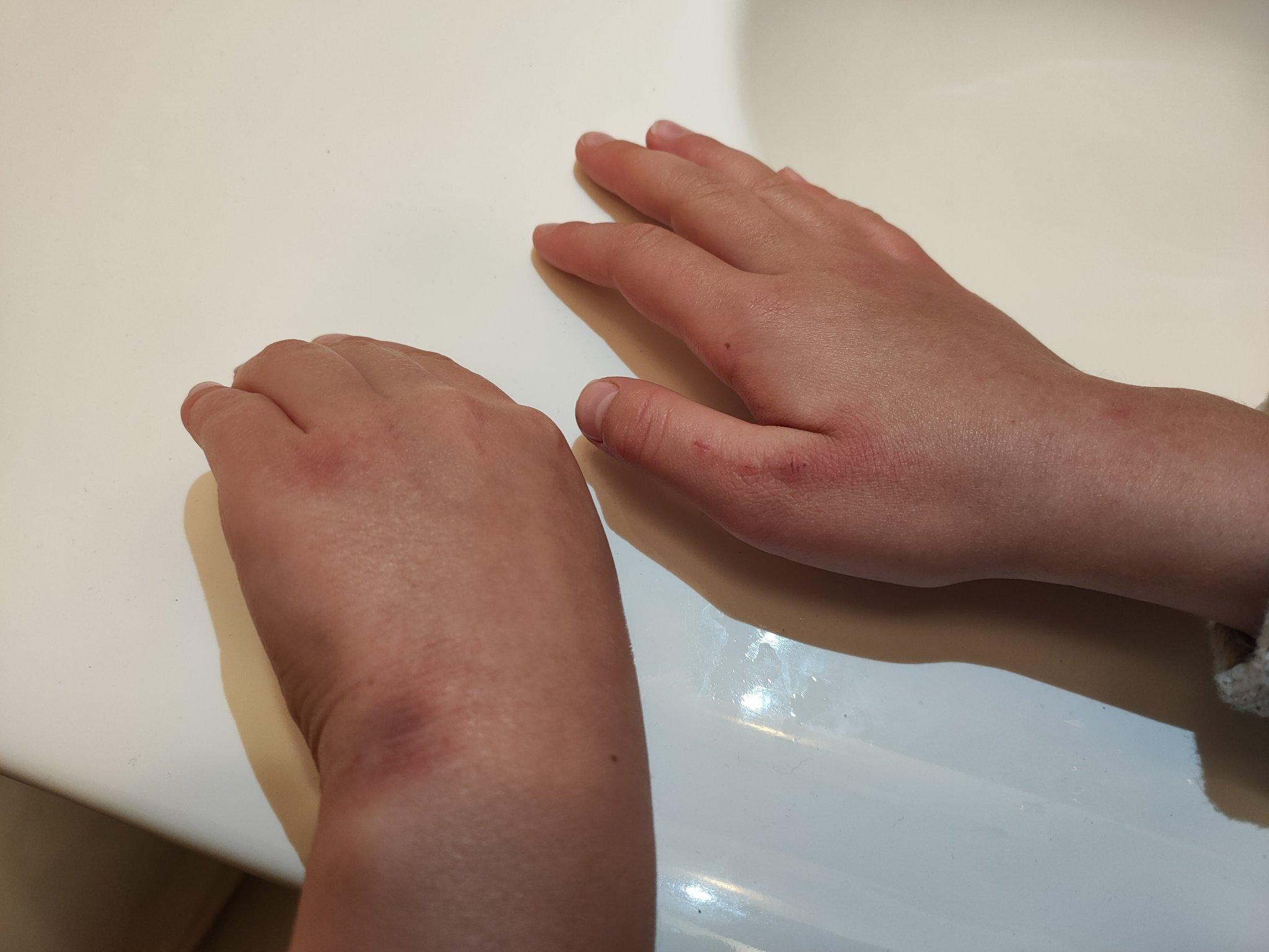 Anna Maria Siarkowska pokazała zdjęcie rąk córki