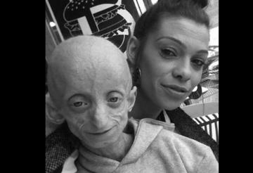 """Ashanti Smith cierpiała na """"chorobę Benjamina Buttona"""". Zmarła w wieku 18 lat."""