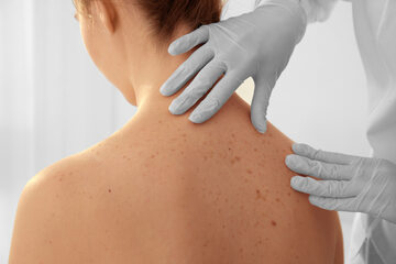 Badanie u dermatologa