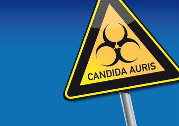 """Candida auris atakuje w USA. Co wiemy o tym lekoopornym """"supergrzybie""""?"""