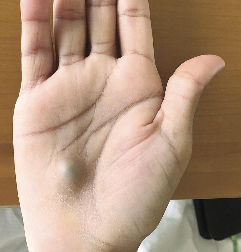 Dłoń 27-letniego Kanadyjczyka