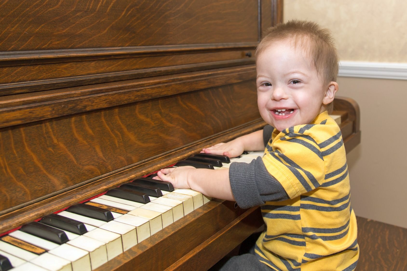 Dziecko z zespołem Downa