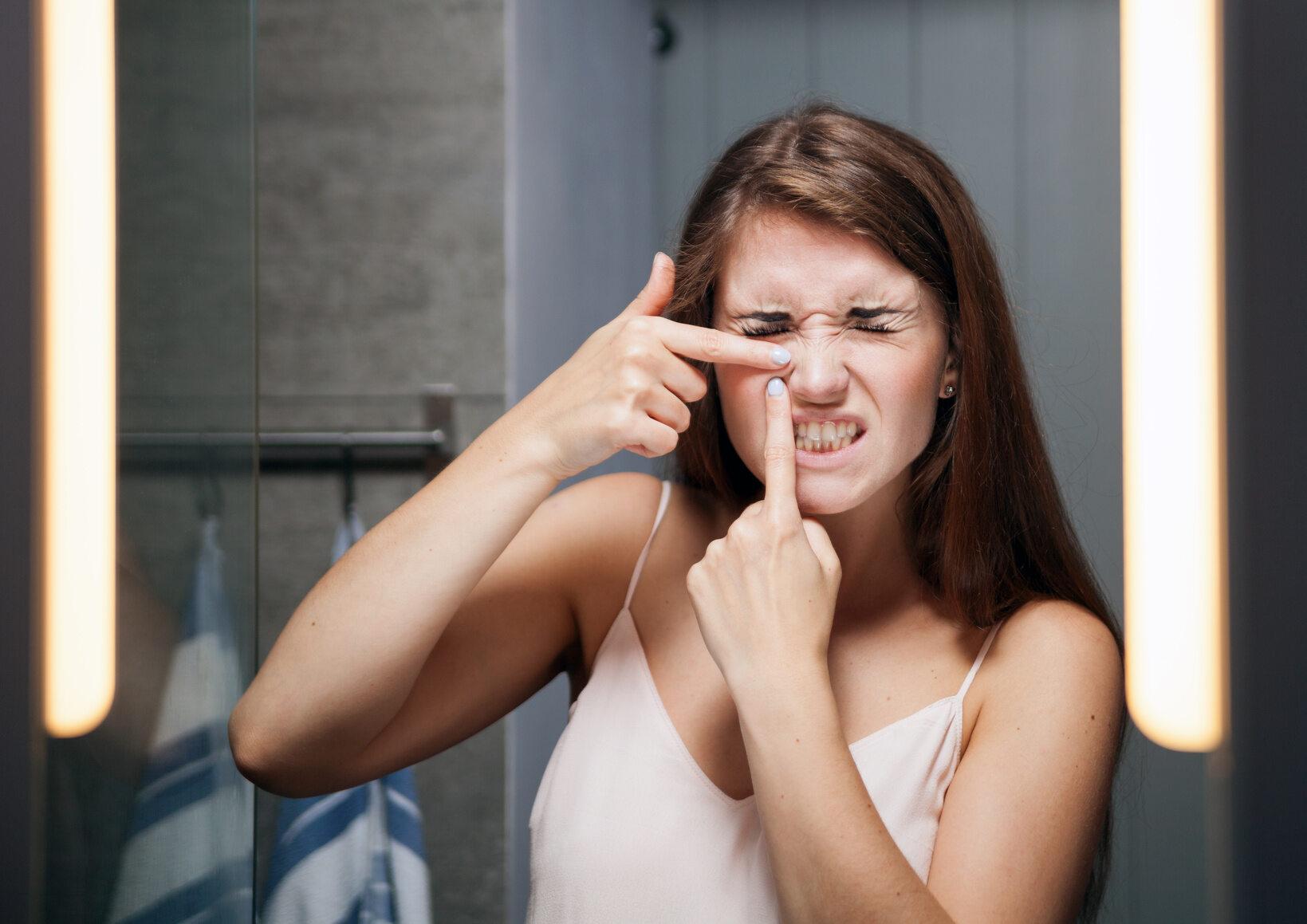 Dziewczyna zmagająca się z niedoskonałościami twarzy (zdj. ilustracyjne)