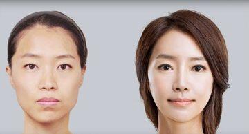 Efekty operacji plastycznych. Zdjęcia przed i po