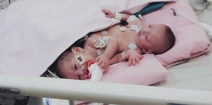Farah i Haneen przed operacją