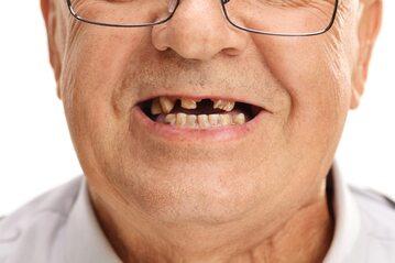 Jaki jest związek pomiędzy liczbą zębów a ryzykiem demencji i utraty funkcji poznawczych mózgu?