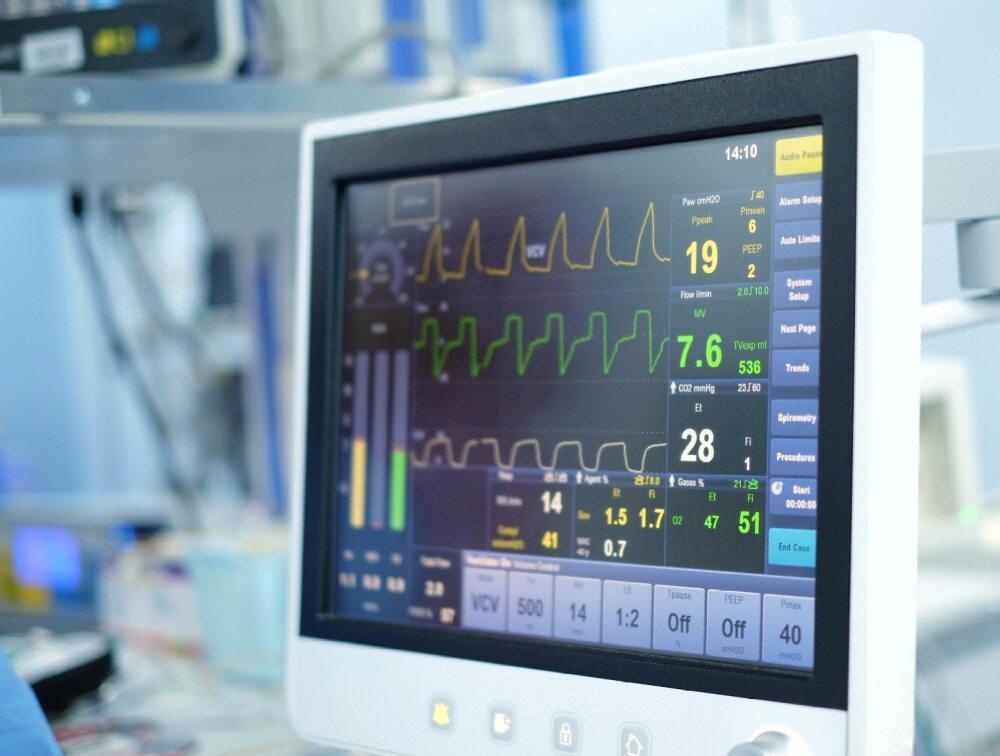 Monitor respiratora
