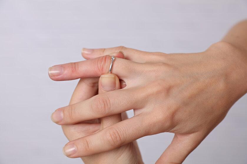 Obrzęk palca