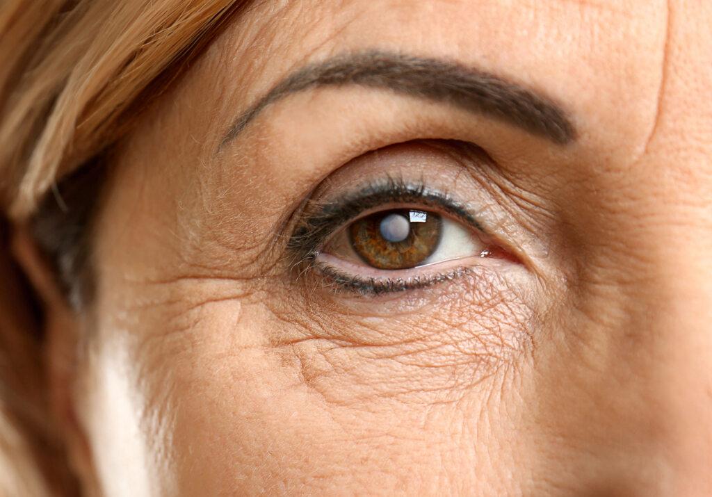 Oko z zaćmą