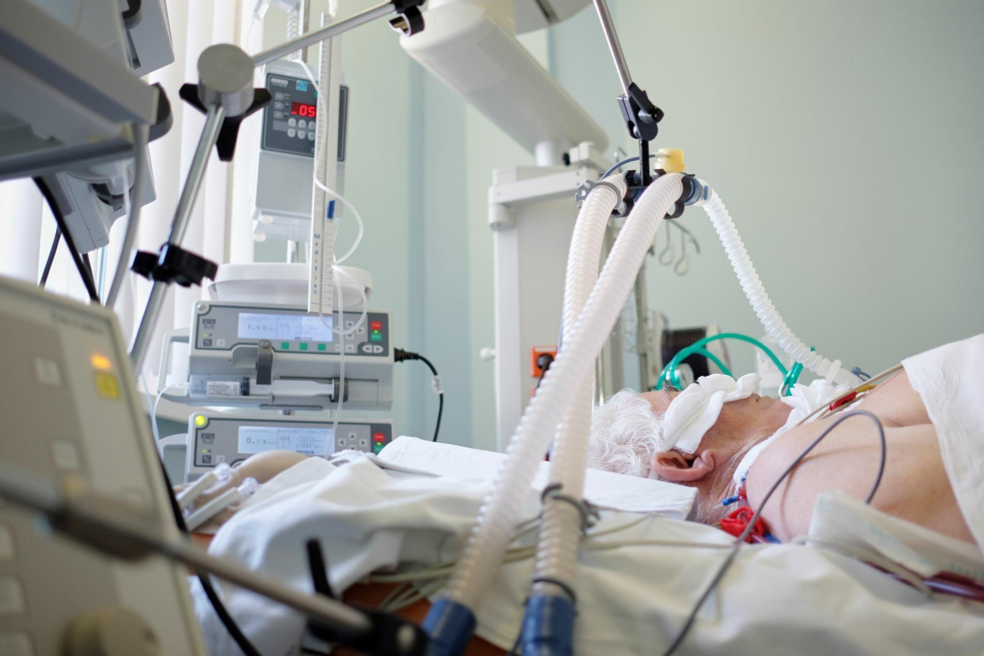 Pacjent pod respiratorem, zdj. ilustracyjne