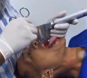 Pacjent podczas zabiegu