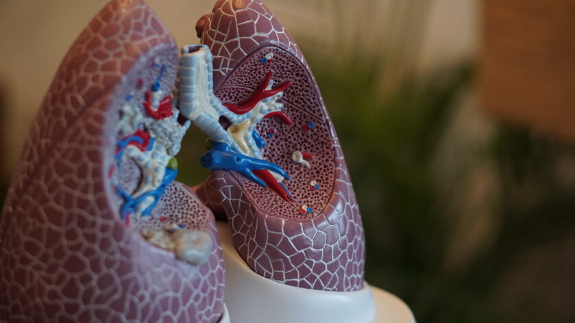 Płuca