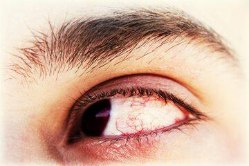 Przekrwione oczy
