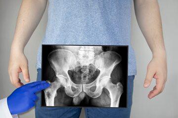 Prześwietlenie kości