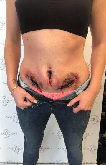 Rachel Smiler Berwick w makijażu obrazującym jej ból powodowany endometriozą