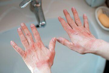 Ręce, dłonie (zdj. ilustracyjne)