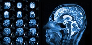 Rezonans magnetyczny, zdjęcie ilustracyjne