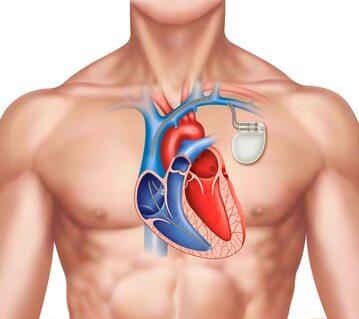 Rozrusznik serca