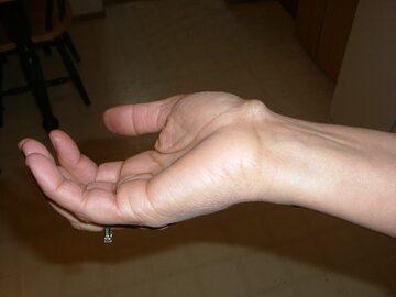 Torbiel galaretowata (ganglion)