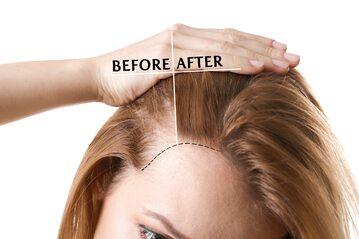 Wypadanie włosów, zdjęcie ilustracyjne