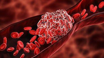 Zakrzep krwi