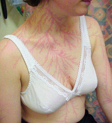 Zdjęcie ciała po uderzeniu pioruna