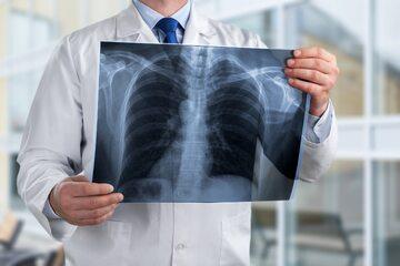 Zdjęcie RTG płuc - zdjęcie ilustracyjne